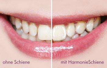 Harmonie Schiene Orthos
