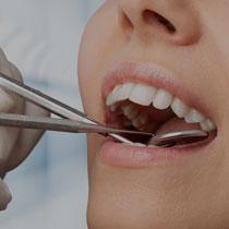 Zahnarztbehandlung